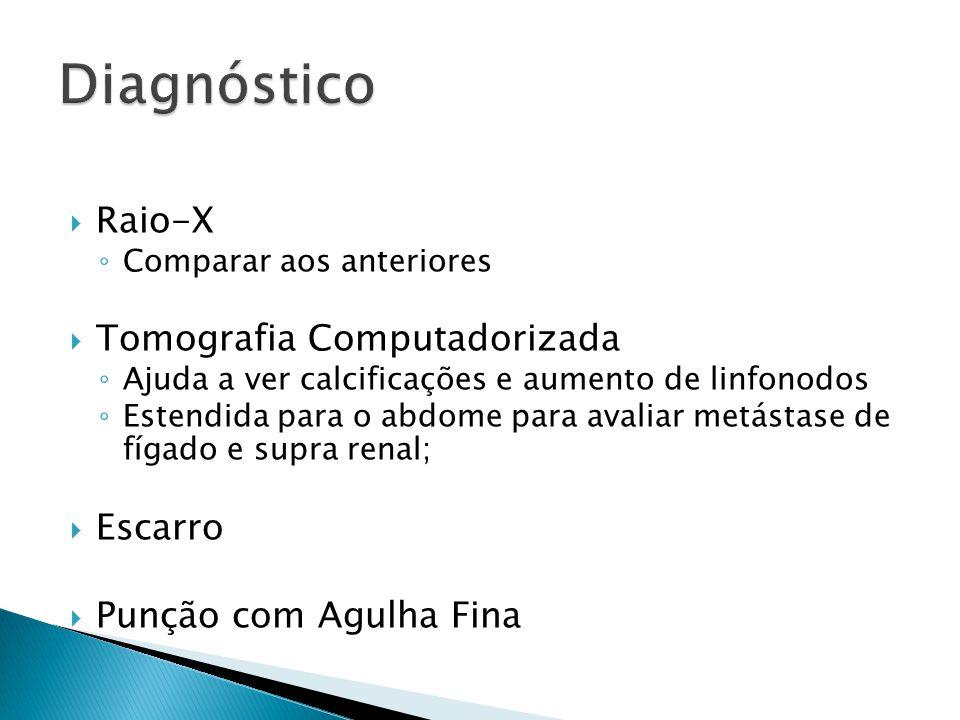 Diagnóstico Raio-X Tomografia Computadorizada Escarro