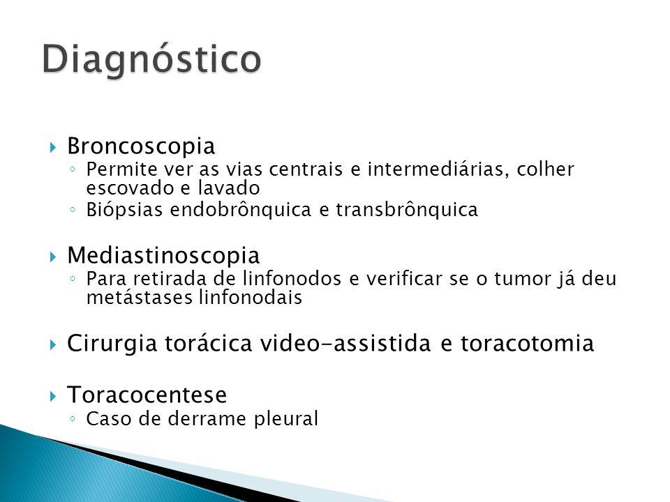 Diagnóstico Broncoscopia Mediastinoscopia