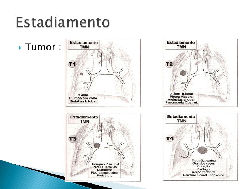 Estadiamento Tumor :