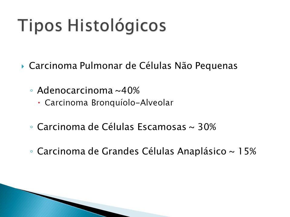 Tipos Histológicos Carcinoma Pulmonar de Células Não Pequenas