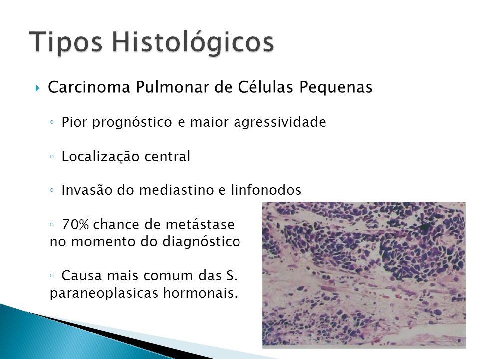 Tipos Histológicos Carcinoma Pulmonar de Células Pequenas