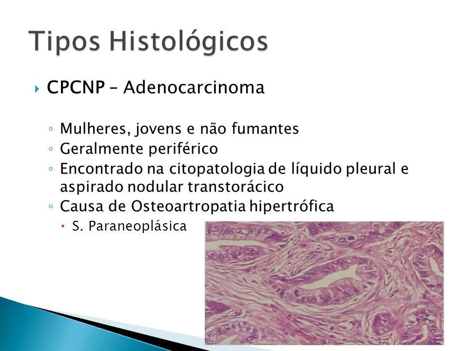 Tipos Histológicos CPCNP – Adenocarcinoma