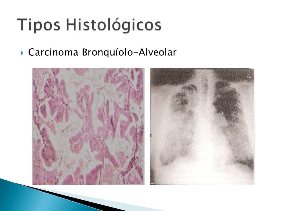 Tipos Histológicos Carcinoma Bronquíolo-Alveolar