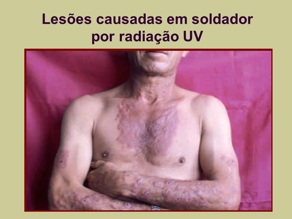 Lesões causadas em soldador por radiação UV
