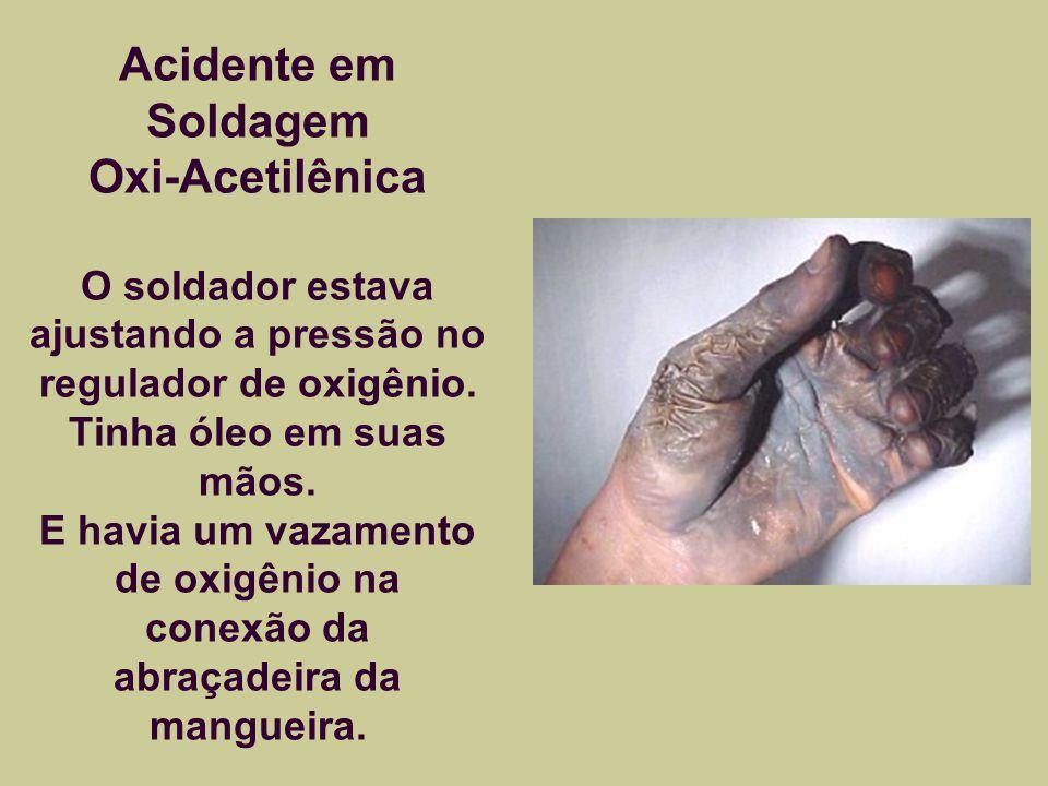 Acidente em Soldagem Oxi-Acetilênica O soldador estava ajustando a pressão no regulador de oxigênio.