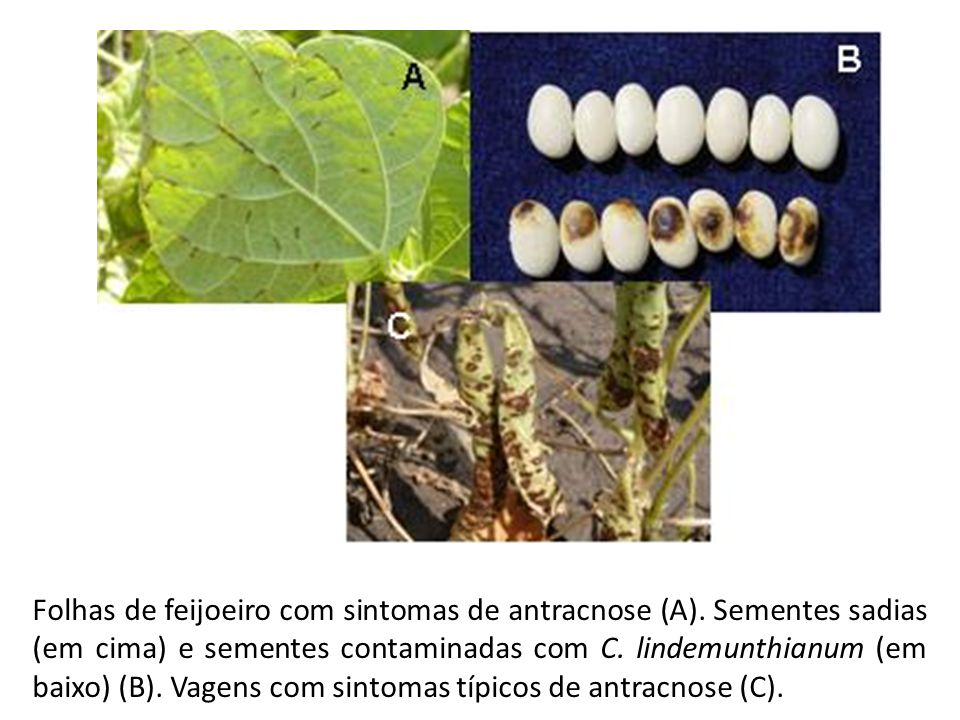 Folhas de feijoeiro com sintomas de antracnose (A)