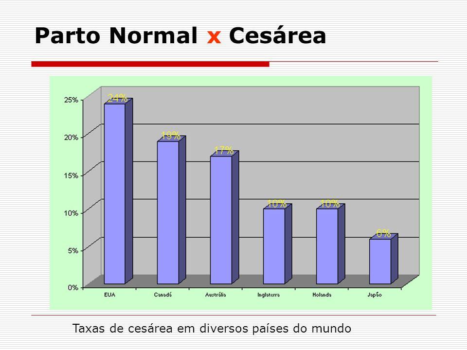 Parto Normal x Cesárea Taxas de cesárea em diversos países do mundo