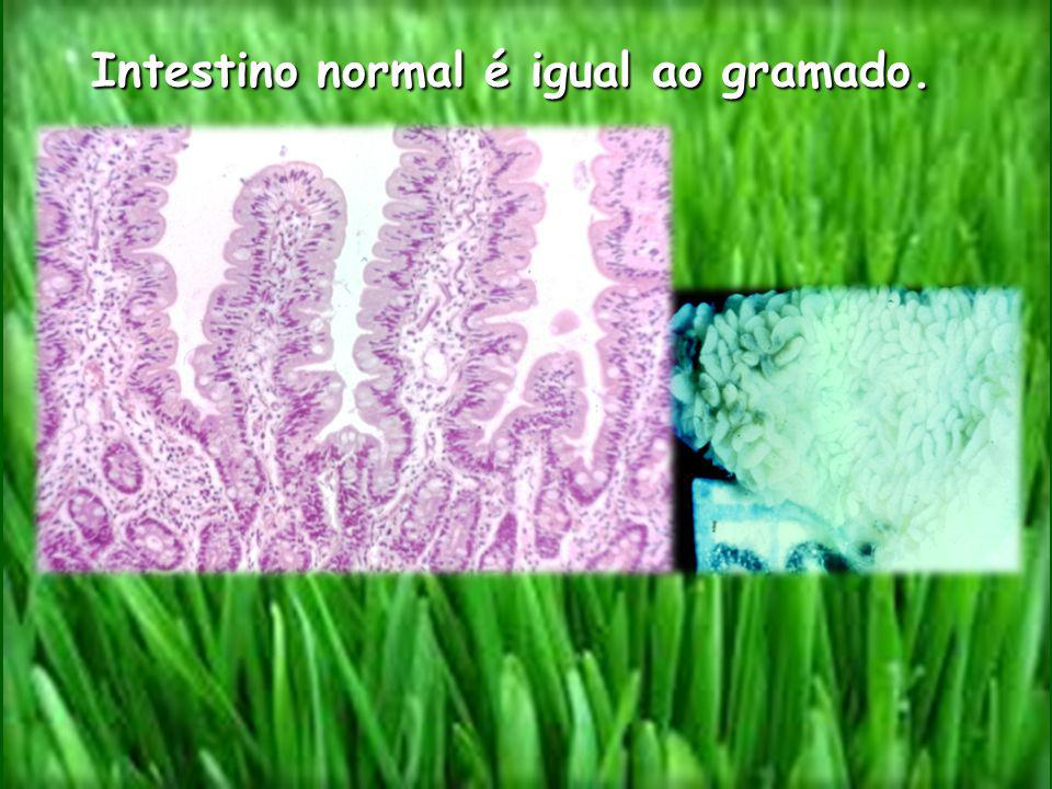 Intestino normal é igual ao gramado.