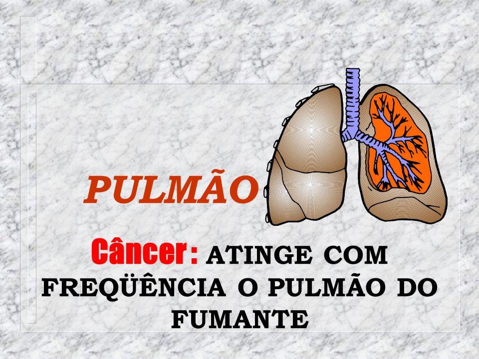 Câncer : ATINGE COM FREQÜÊNCIA O PULMÃO DO FUMANTE