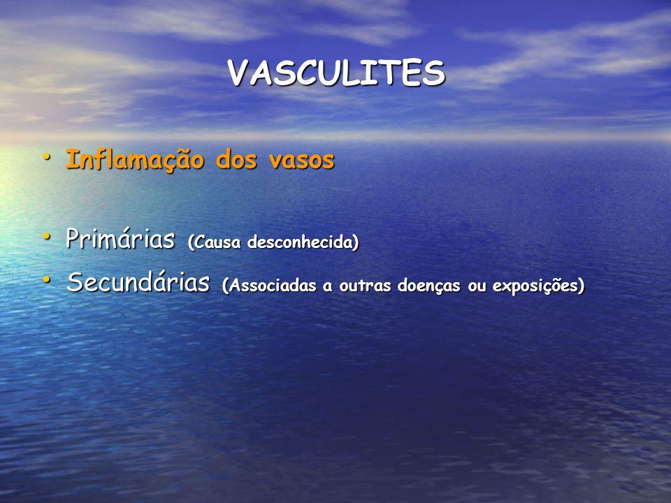 VASCULITES Inflamação dos vasos Primárias (Causa desconhecida)