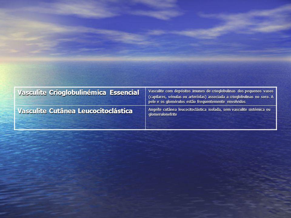 Vasculite Crioglobulinémica Essencial