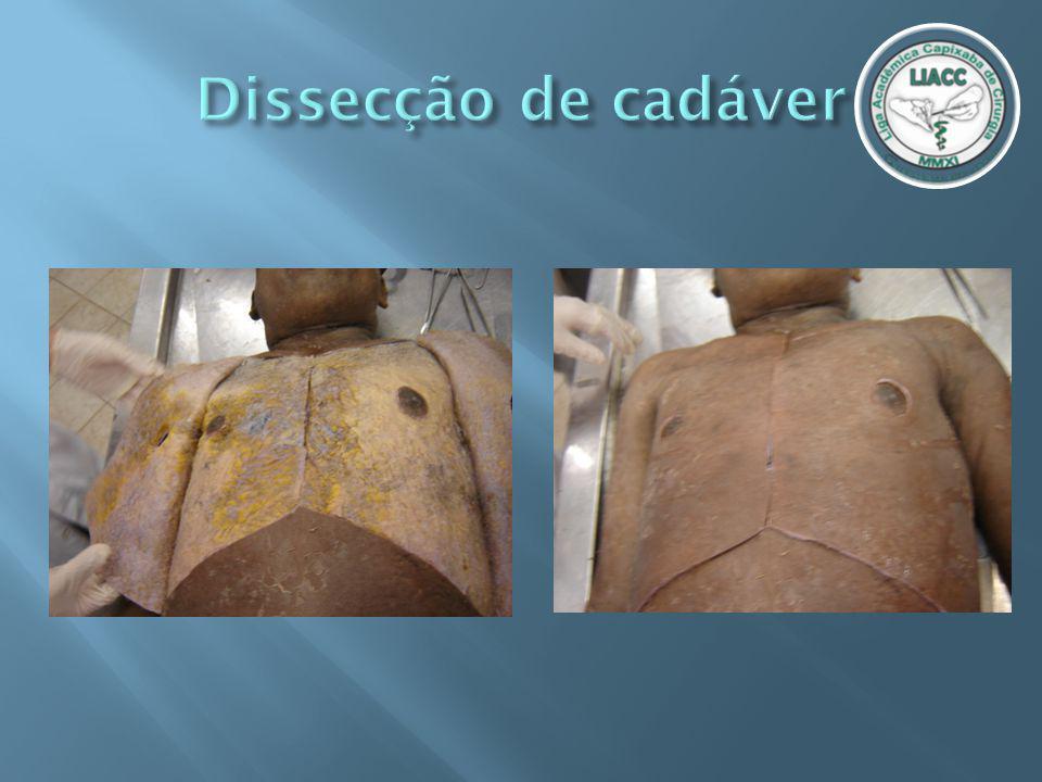 Dissecção de cadáver