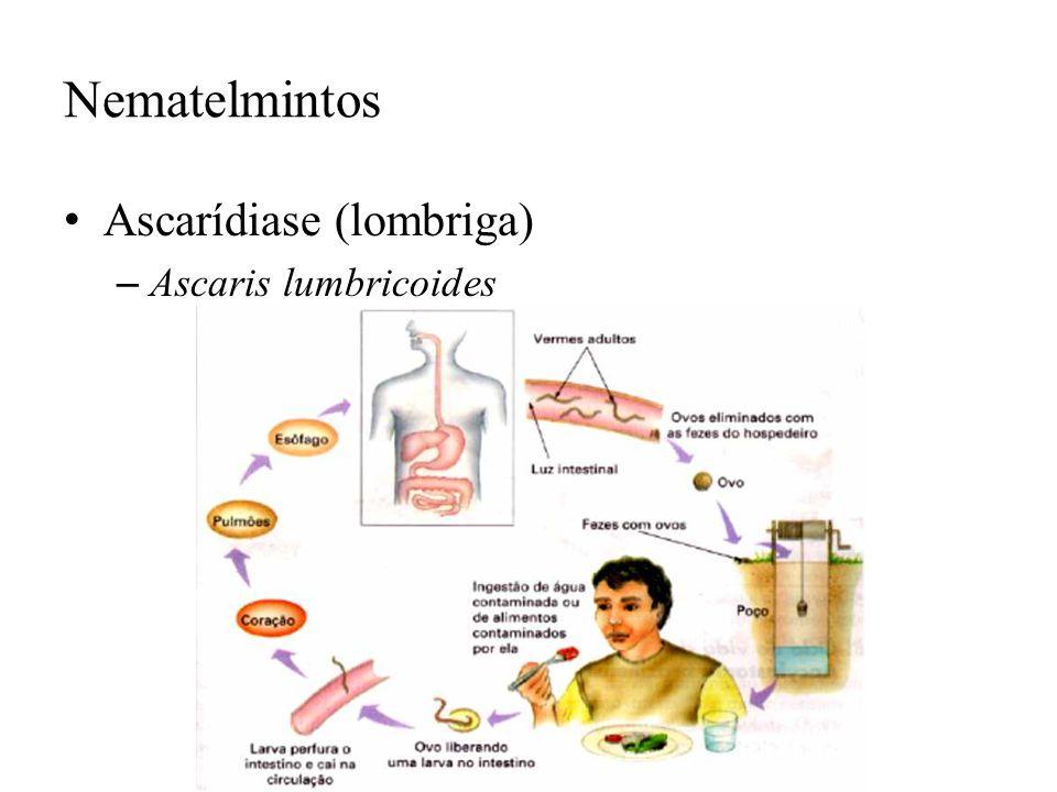 Nematelmintos Ascarídiase (lombriga) Ascaris lumbricoides