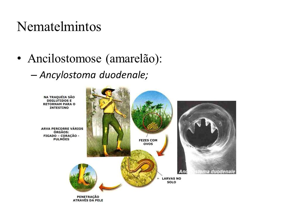 Nematelmintos Ancilostomose (amarelão): Ancylostoma duodenale;