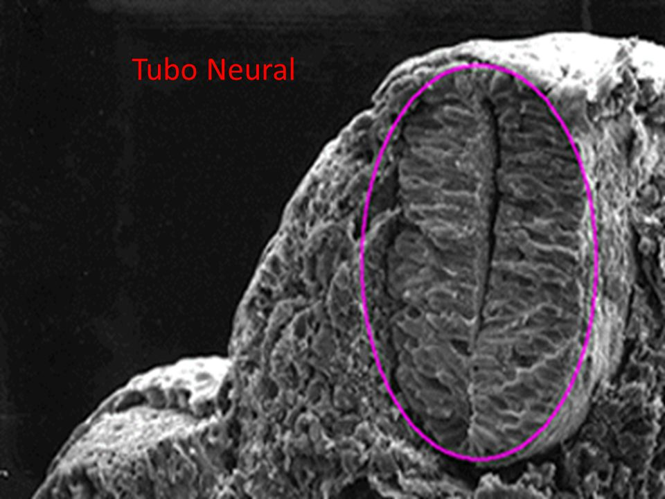 Tubo Neural 02/07/2012
