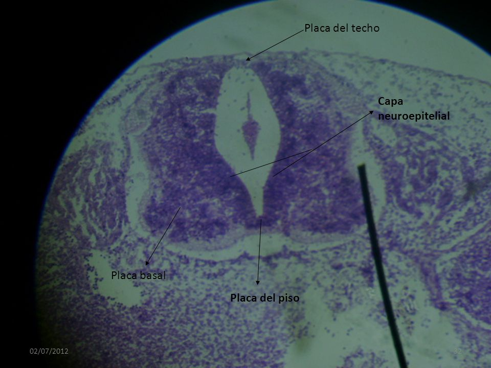 Placa del techo Capa neuroepitelial Placa basal Placa del piso