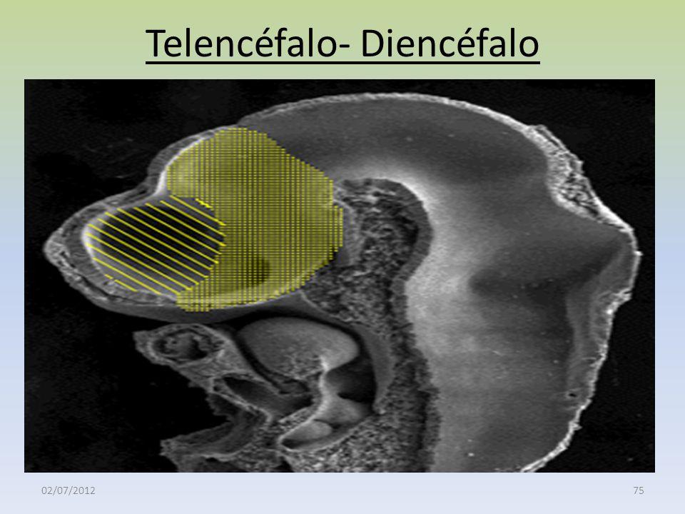 Telencéfalo- Diencéfalo