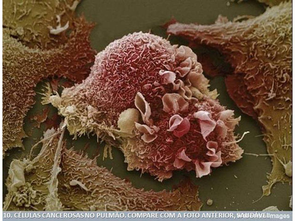 10. CÉLULAS CANCEROSAS NO PULMÃO. COMPARE COM A FOTO ANTERIOR, SAUDÁVEL