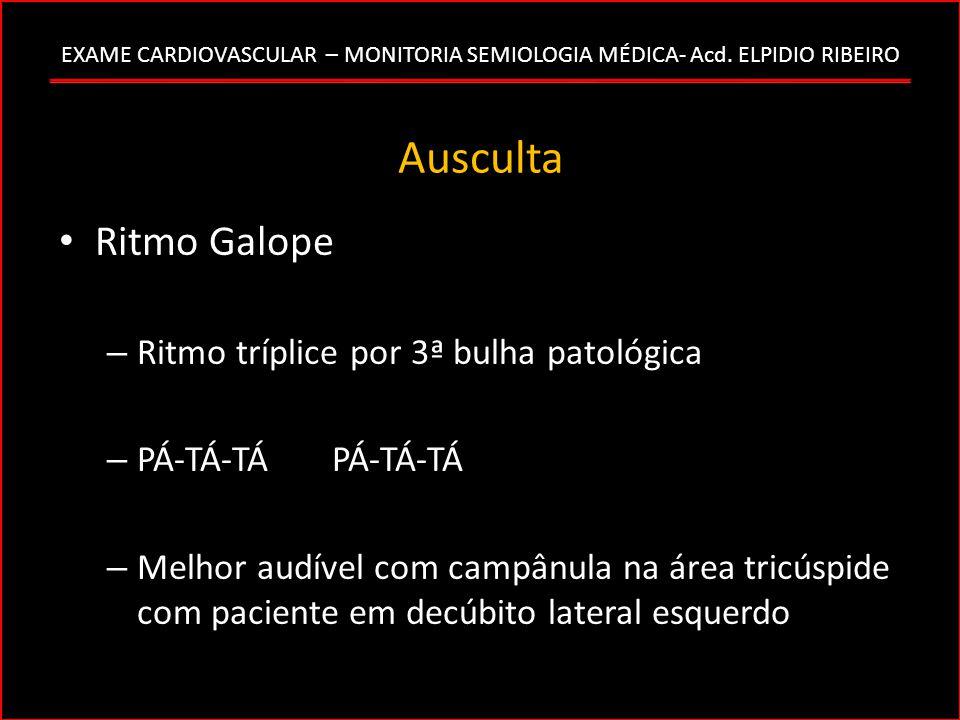 Ausculta Ritmo Galope Ritmo tríplice por 3ª bulha patológica