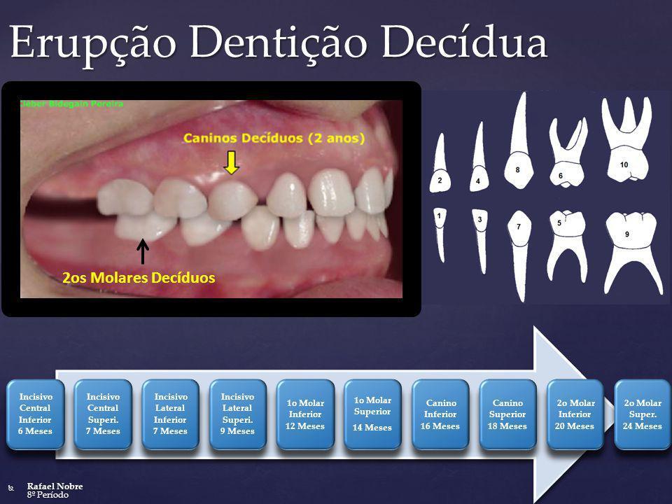Erupção Dentição Decídua