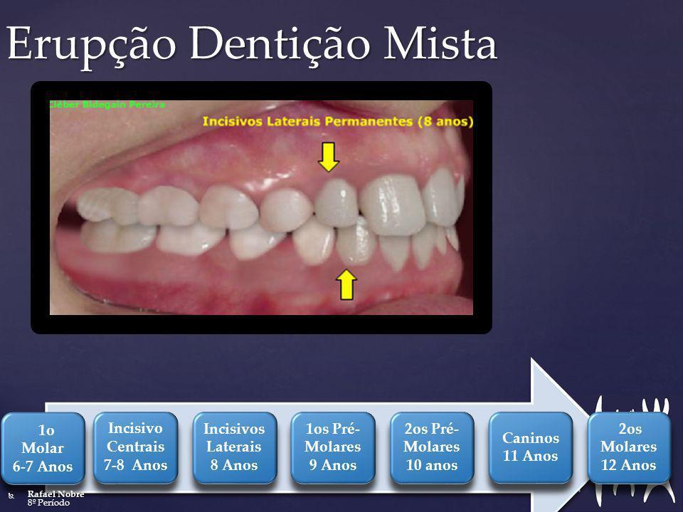 Erupção Dentição Mista