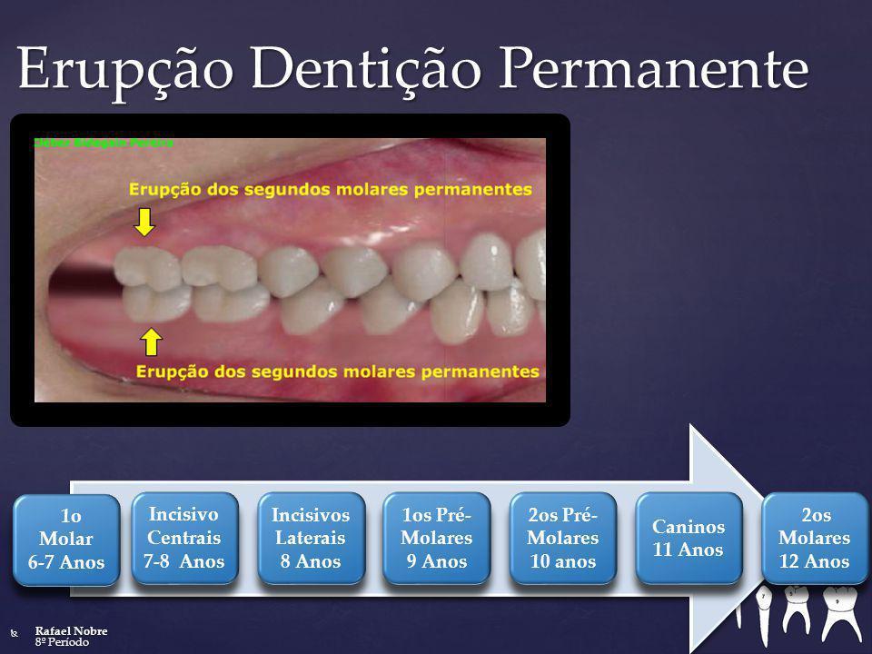 Erupção Dentição Permanente