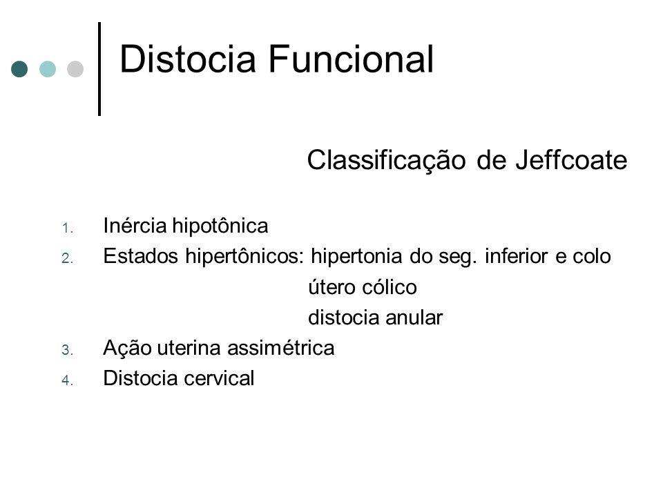 Distocia Funcional Classificação de Jeffcoate Inércia hipotônica