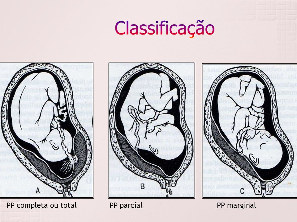 Classificação PP completa ou total PP parcial PP marginal