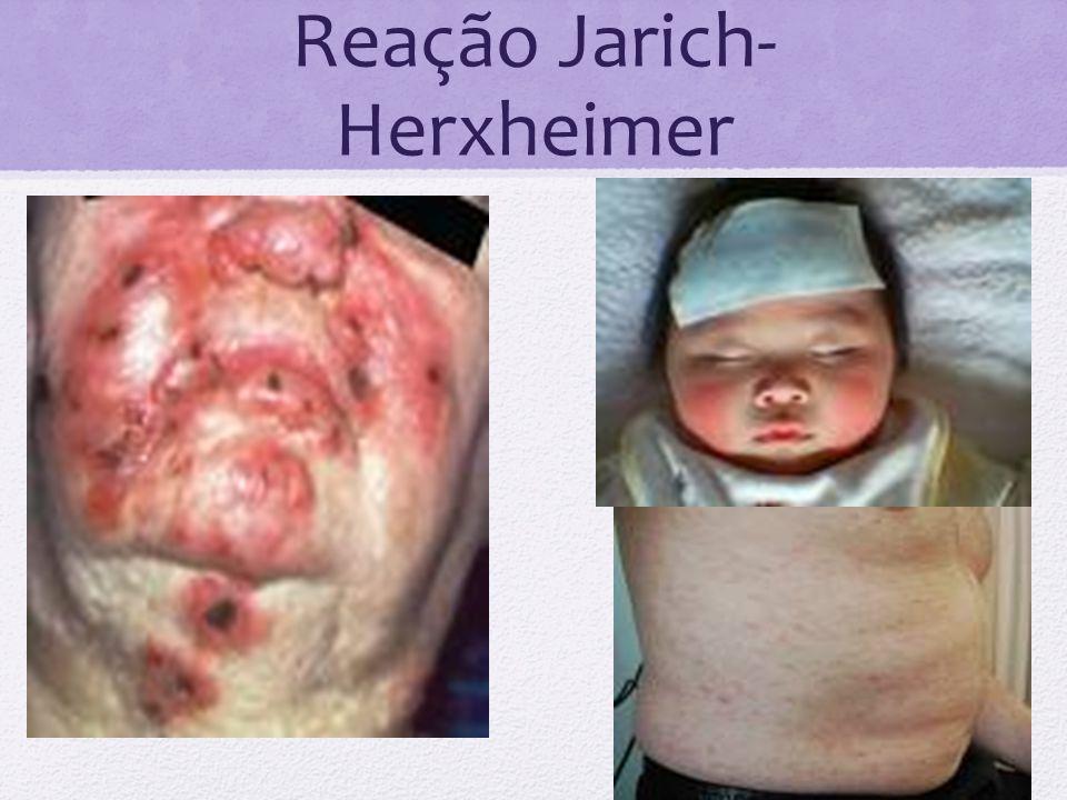 Reação Jarich-Herxheimer