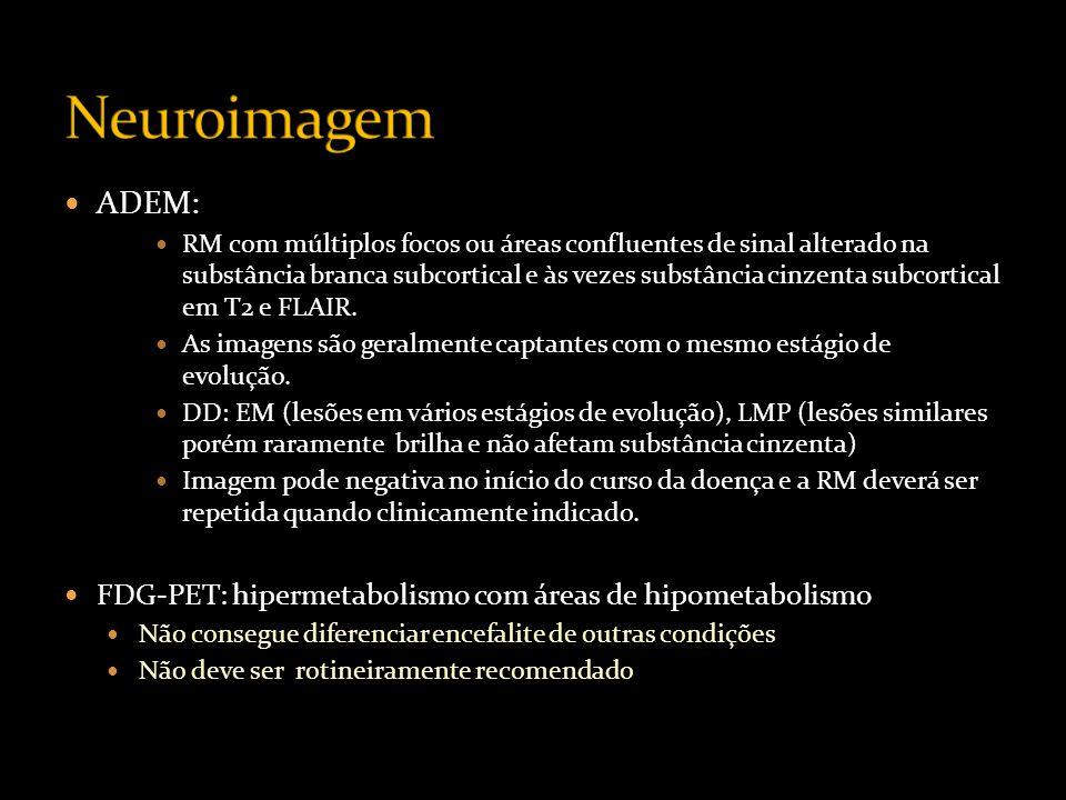 Neuroimagem ADEM: