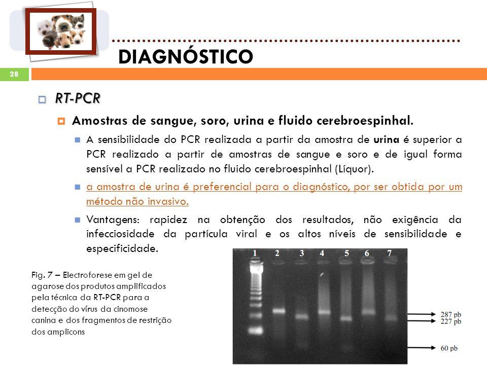 DIAGNÓSTICO RT-PCR. Amostras de sangue, soro, urina e fluido cerebroespinhal.