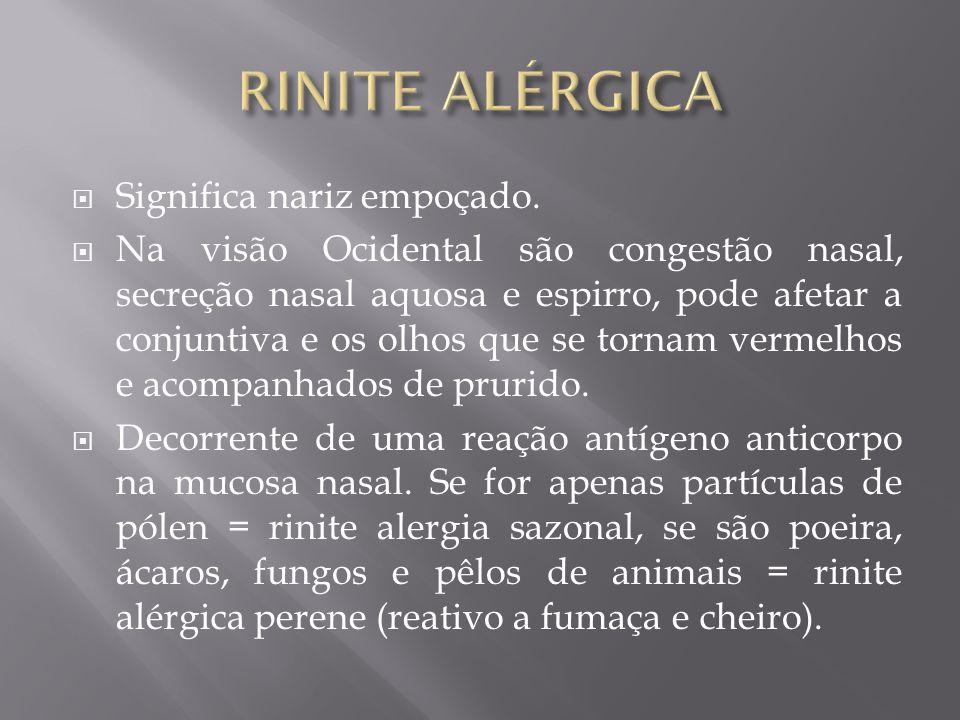 RINITE ALÉRGICA Significa nariz empoçado.