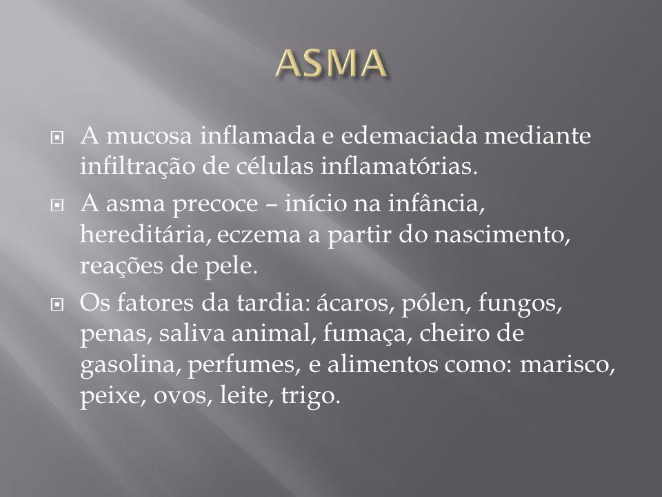 ASMA A mucosa inflamada e edemaciada mediante infiltração de células inflamatórias.