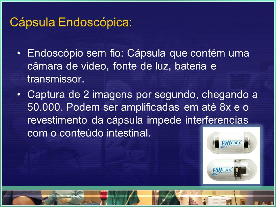 Cápsula Endoscópica: Endoscópio sem fio: Cápsula que contém uma câmara de vídeo, fonte de luz, bateria e transmissor.