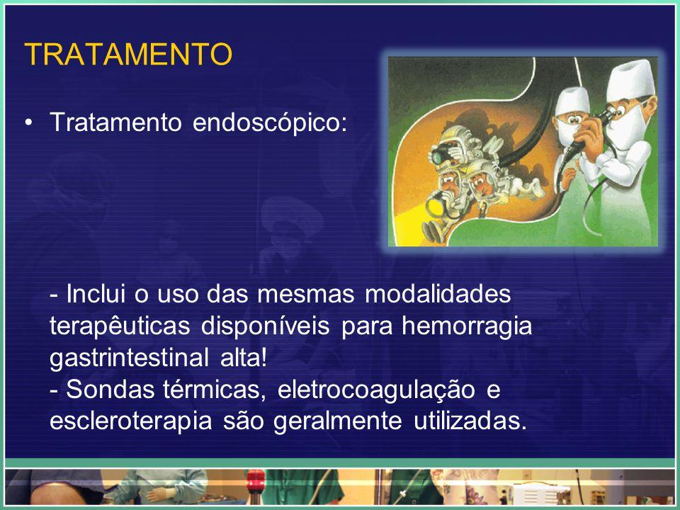 TRATAMENTO Tratamento endoscópico: