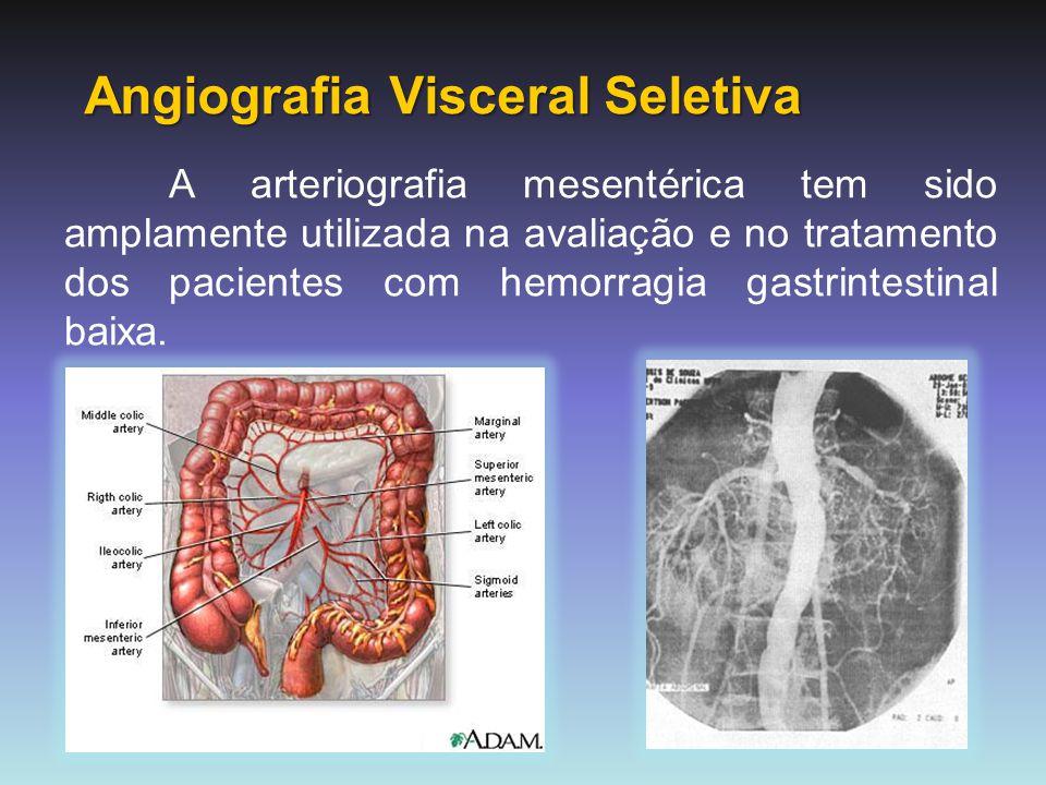 Angiografia Visceral Seletiva