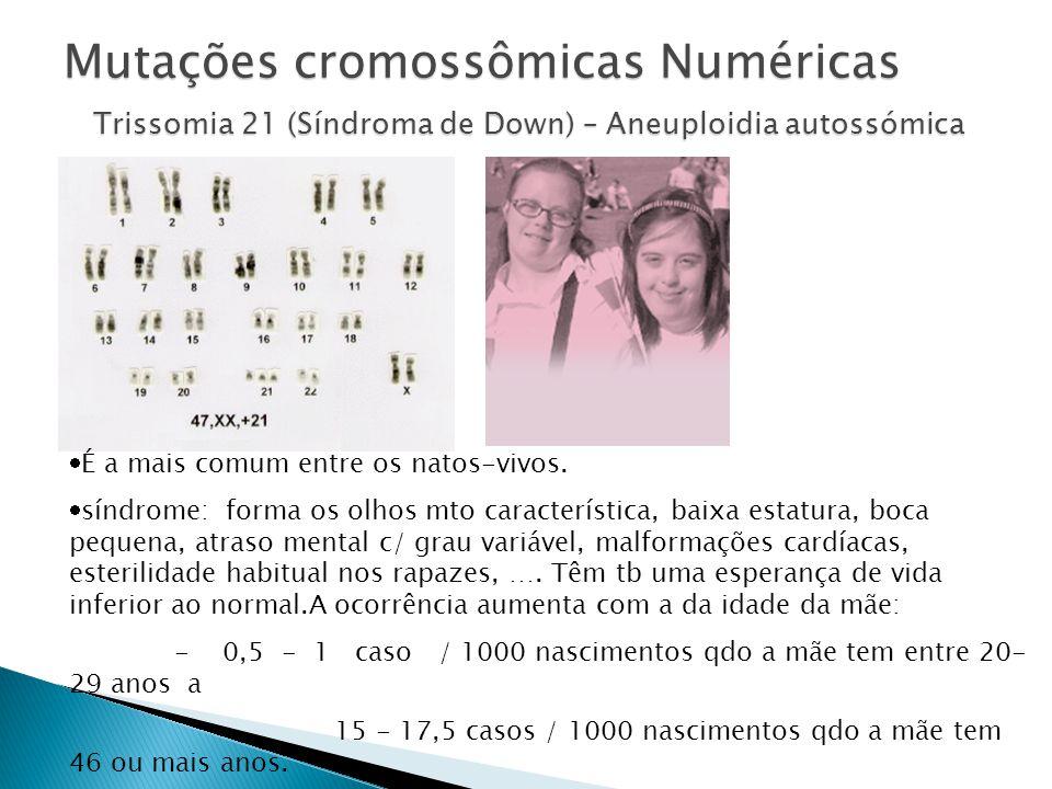 Mutações cromossômicas Numéricas Trissomia 21 (Síndroma de Down) – Aneuploidia autossómica