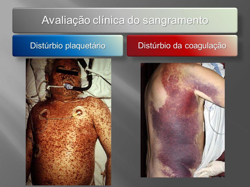 Avaliação clínica do sangramento