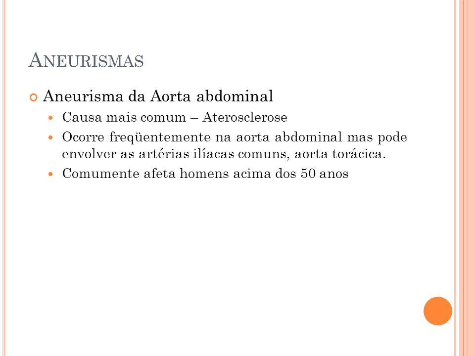 Aneurismas Aneurisma da Aorta abdominal