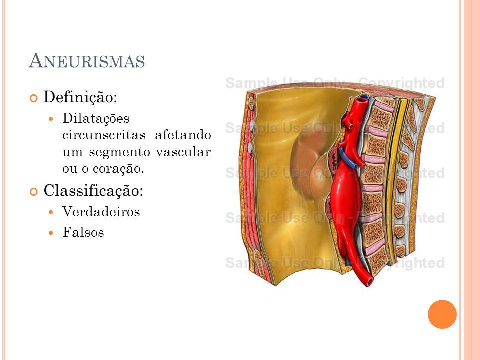 Aneurismas Definição: Classificação: