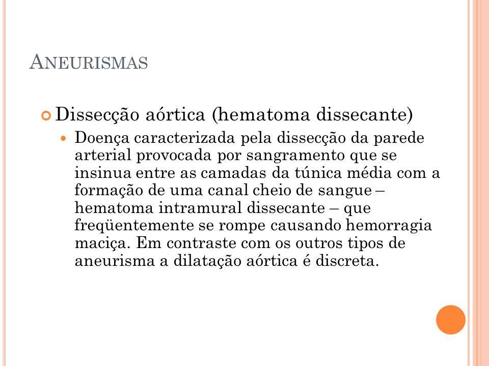 Aneurismas Dissecção aórtica (hematoma dissecante)