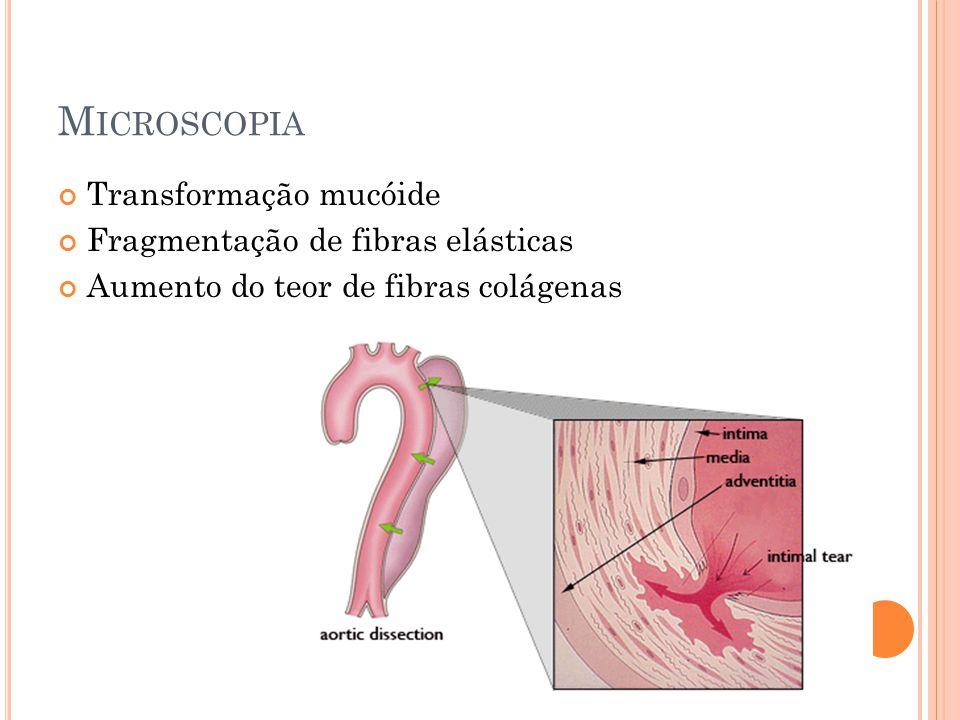 Microscopia Transformação mucóide Fragmentação de fibras elásticas