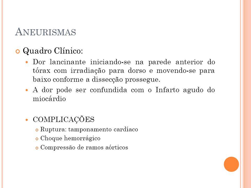 Aneurismas Quadro Clínico:
