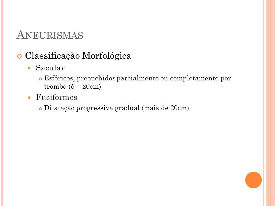 Aneurismas Classificação Morfológica Sacular Fusiformes