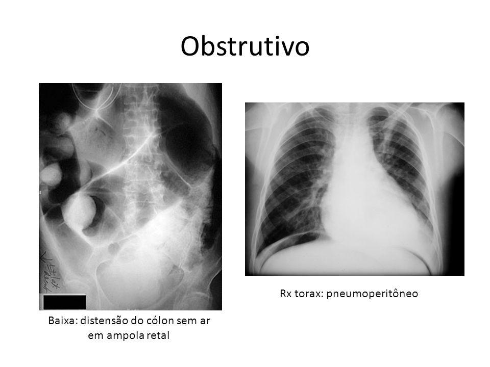 Obstrutivo Rx torax: pneumoperitôneo