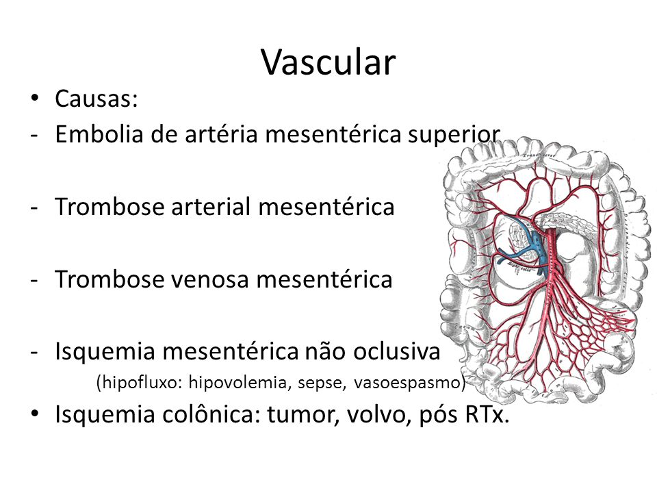 Vascular Causas: Embolia de artéria mesentérica superior