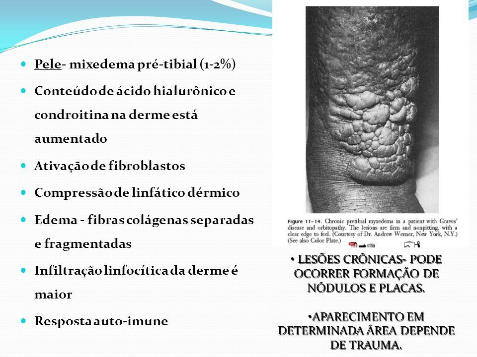 Pele- mixedema pré-tibial (1-2%)