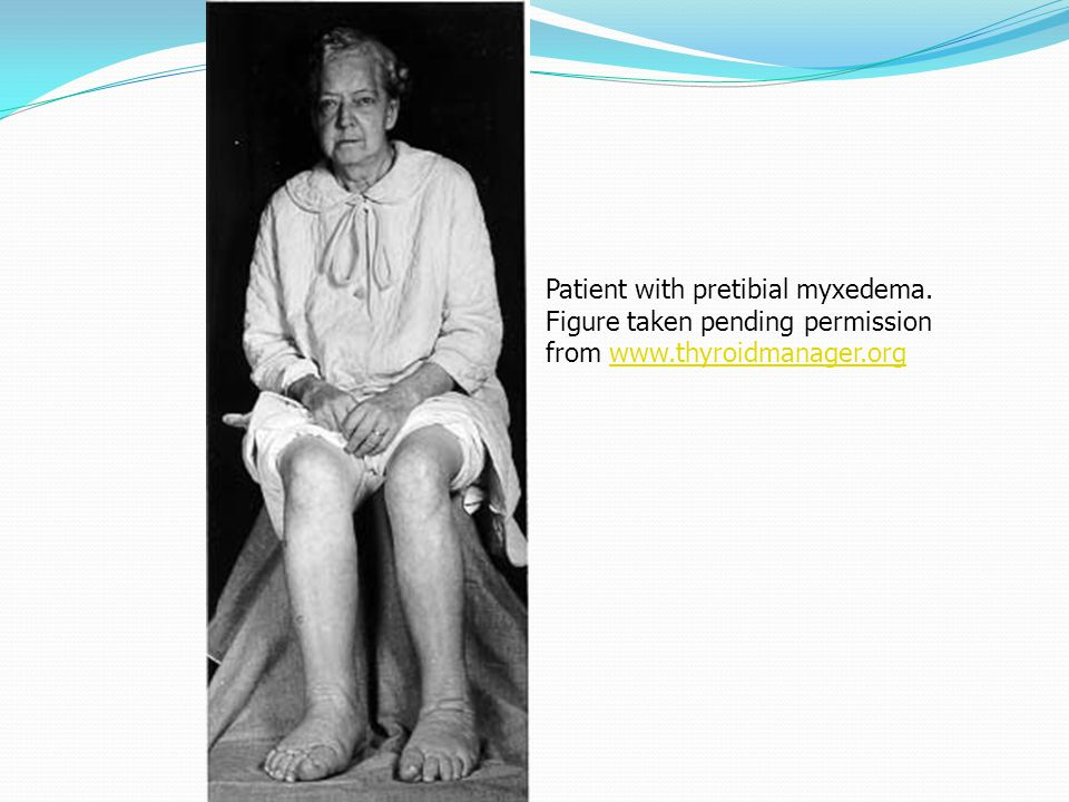 Patient with pretibial myxedema