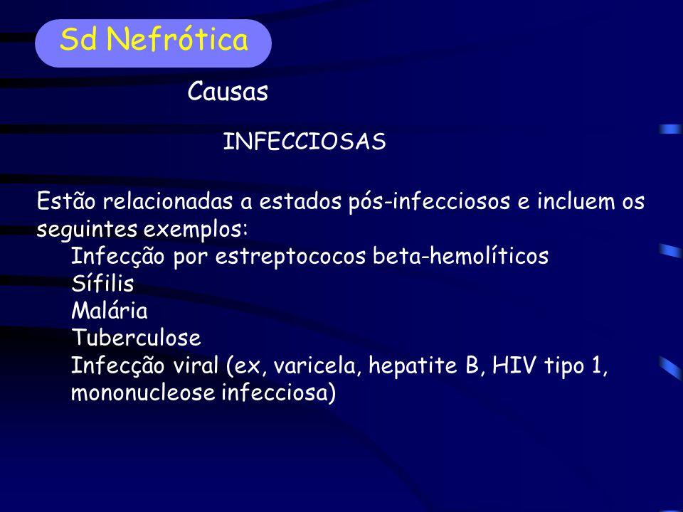 Sd Nefrótica Causas INFECCIOSAS