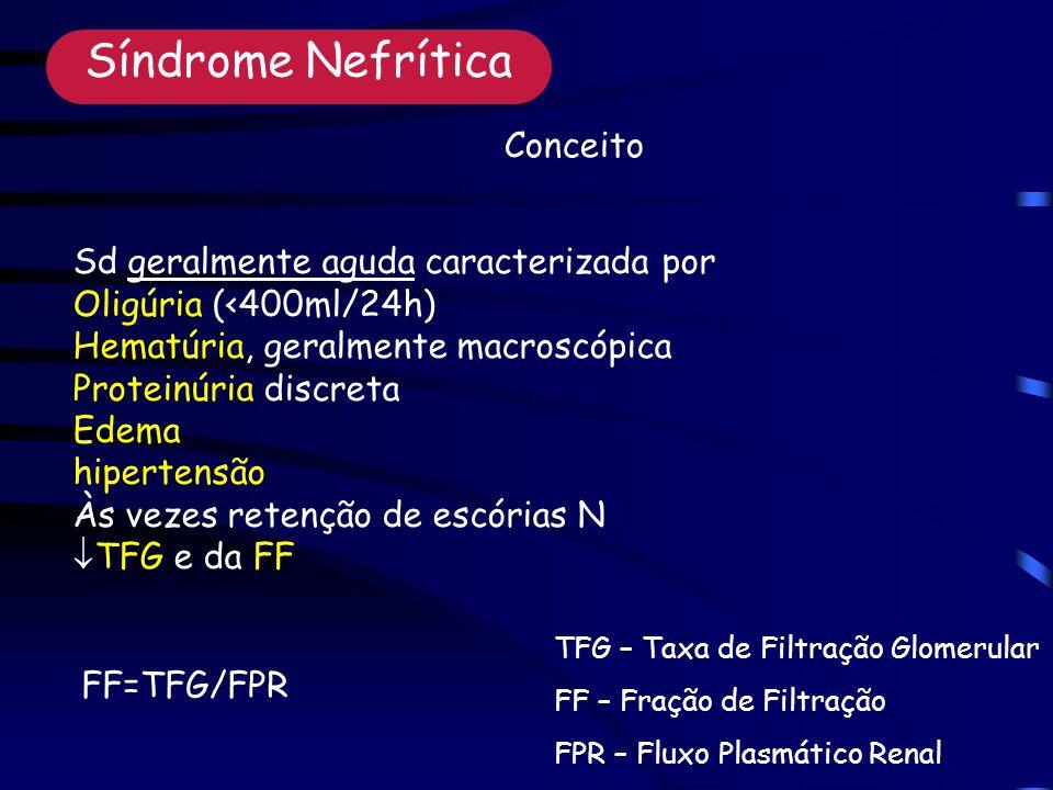 Síndrome Nefrítica Conceito Sd geralmente aguda caracterizada por